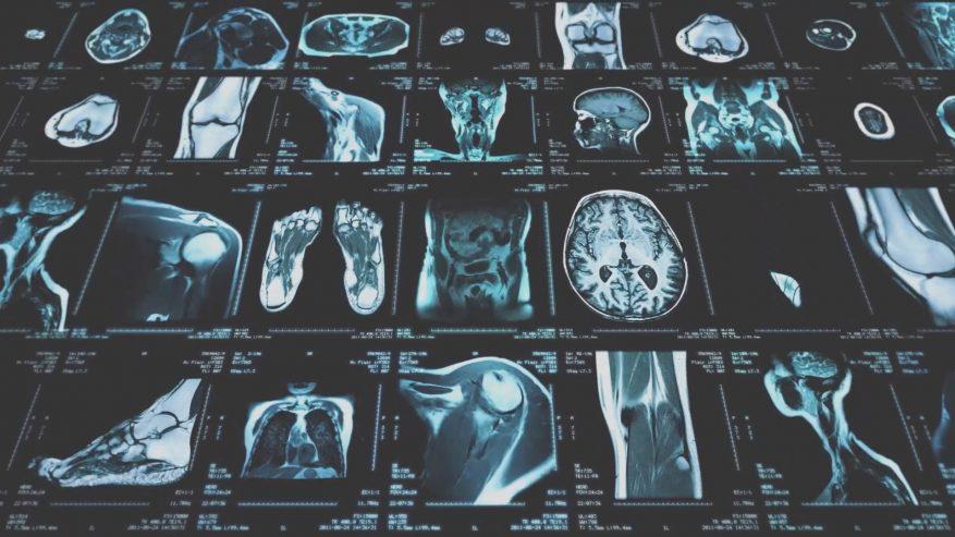 Imagem: raios-x um ao lado do outro. Dados.